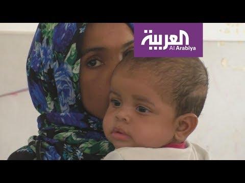 العرب اليوم - الجوع والأمراض تُسيطر على مراكز احتجاز المهاجرين في ليبيا
