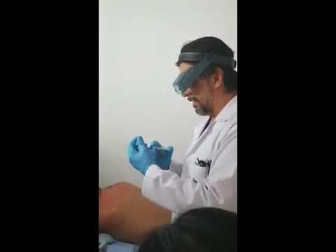 Opiniones farmacopuntura osteocondrosis