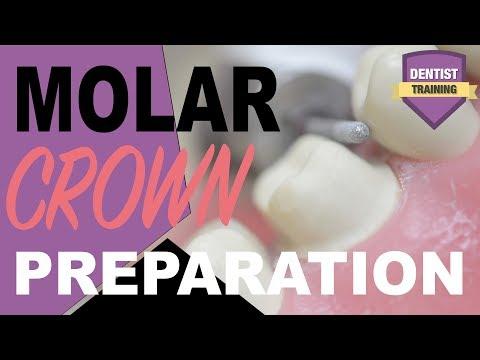 Molar Crown Preparation | Dental Crown Techniques