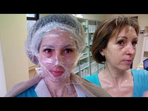 69| ЖЕЛТЫЙ ПИЛИНГ - процедура и шелушение день за днем | Golden Yellow Peel Dermatime