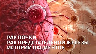 На приёме у доктора Каприна. Рак почки и предстательной железы | Телеканал Доктор