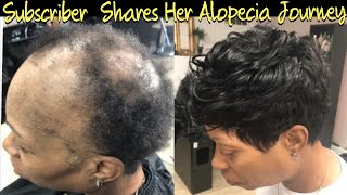 Severe Alopecia Sew In | Subscriber Free Transformation ( Listen to her Alopecia Journey)