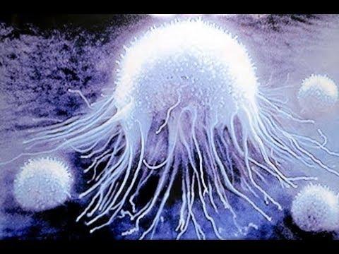 Увеличены лейкоциты в предстательной железе