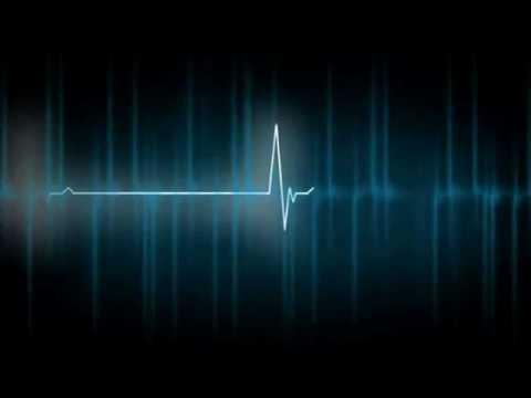 Di cui la più bassa pressione sanguigna sdraiata