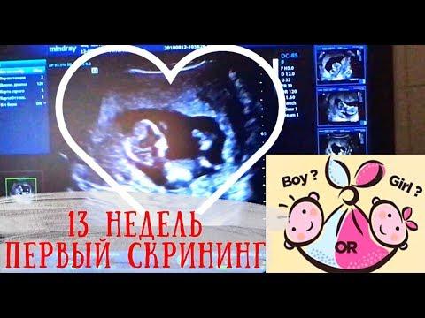 Мальчик или девочка?ПЕРВЫЙ СКРИНИНГ 💗 13 НЕДЕЛЬ БЕРЕМЕННОСТИ/Boy or girl? 🚺🚹