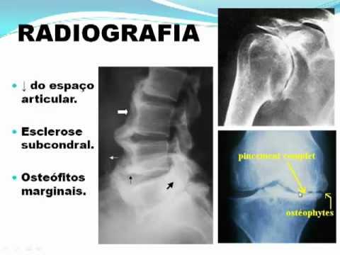 Osteocondrosi diagnosi esacerbazione