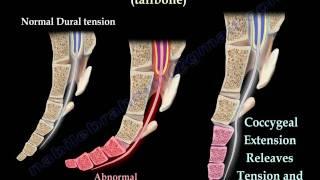 Coccyx, Tailbone pain /coccydynia - Everything You Need To Know - Dr. Nabil Ebraheim