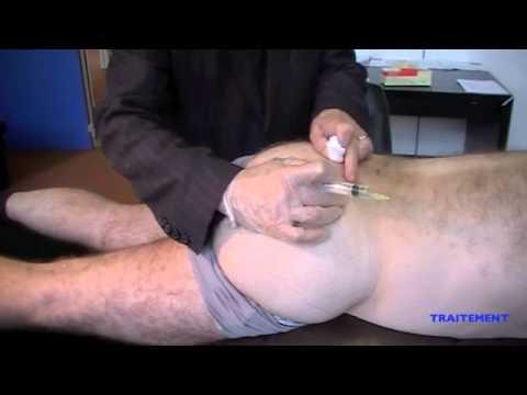 La norme du contenu de la graisse de leau et les muscles dans lorganisme