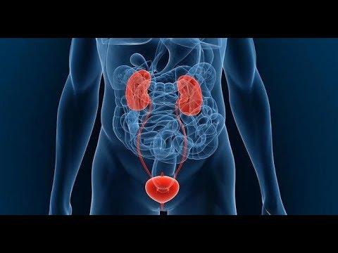 UHF en el tratamiento de prostatitis