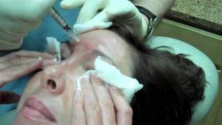 Dysport Injection to frown lines, forehead, crows feet, lower lids and nose bunny lines
