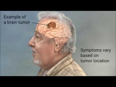 Herpes simple y papiloma humano