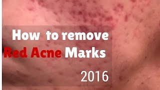 How to remove red marks from acne
