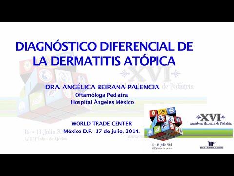 Atopichesky la dermatitis a los niños 1 año