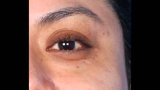 Dermapen Before and After Photos - Vadazzle.com