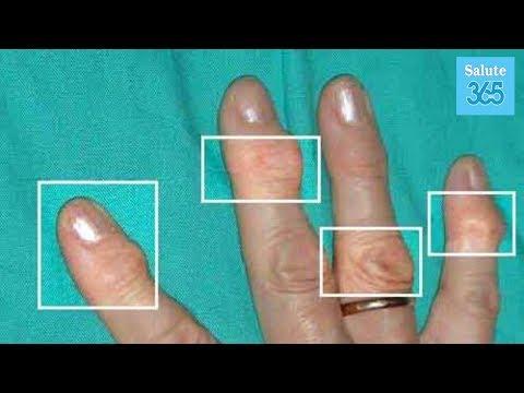 Stesso per malattie degenerative del disco cervicale