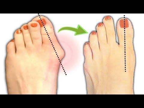 Molotkoobrasnaja die Entstellung des zweiten Fingers des Beines