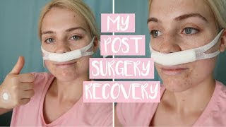 WHAT TO EXPECT AFTER NASAL SURGERY   First Week of Post-Sinus (Septoplasty) Operation Recovery!