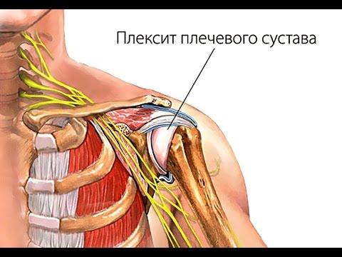 Плексит (воспаление плечевого сплетения) - причины, симптомы, лечение