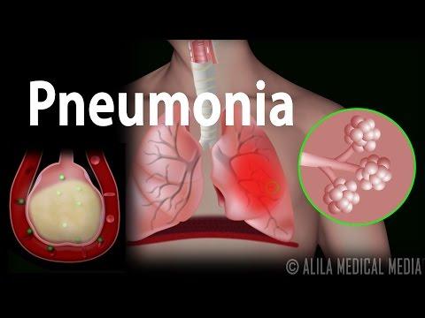 Video Pneumonia, Animation