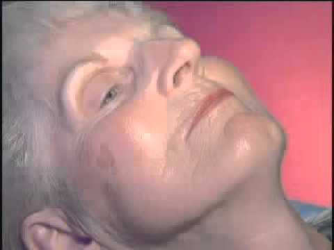 Le ragioni di pigmentary notano su una faccia un forum