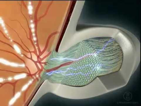 Очки для зрения на заказ астрахань