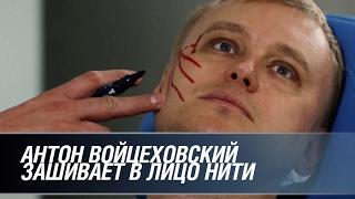 Что не попало в эфир: Войцеховский зашивает в лицо нити