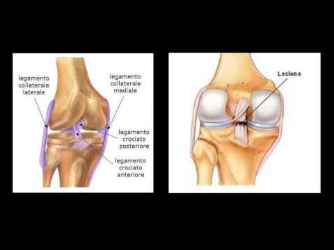 Il mal di schiena che a strofinare