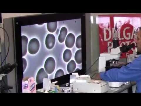 Sibirischen Ginseng bei Diabetes