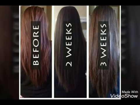 Który w sprayu jest najlepszy na wypadanie włosów