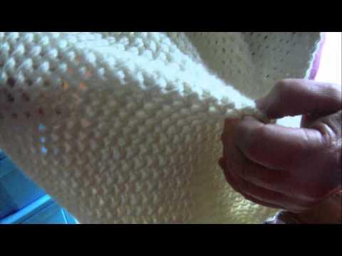 Koślawe zniekształcenie palucha artroskopii