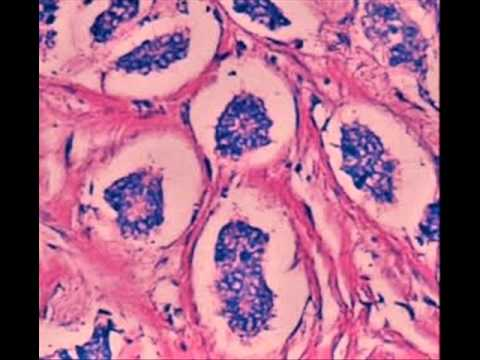 La dermatite di atopic passa a bambini
