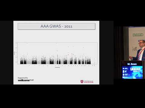 Bown Matt - Genetic insight into abdominal aortic aneurysm