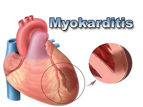 Herz in Hypertonie