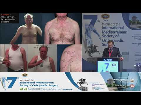 Hawi N - Proximal humeral fractures: Operative versus non-operative treatment