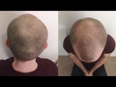, title : 'Pumpkin Seed Oil for Hair Loss (24 week self experiment)