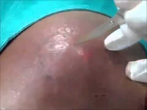 Środki atopowego zapalenia skóry u dzieci