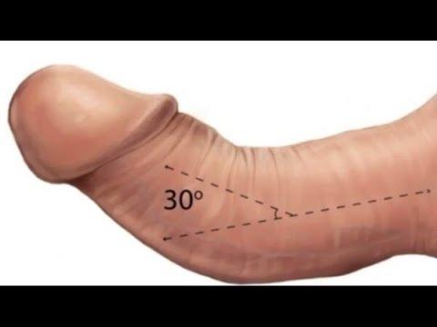De ce de la penis