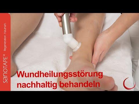 Pilz auf den Nägeln die Füße von Diabetikern