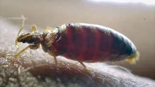 Insecticide resistant Bed bugs - The Ladykillers: Pest Detectives - Episode 1 Preview - BBC Two