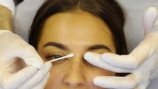 30 minute Non-Surgical Nose Job with Dr Tim | SkinViva