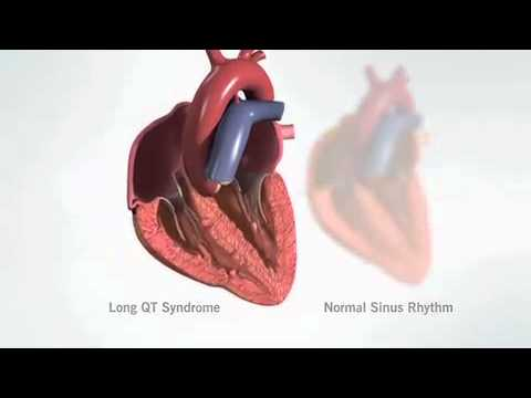 Video Long QT Syndrome