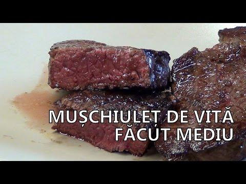 Boli ale țesutului conjunctiv muscular