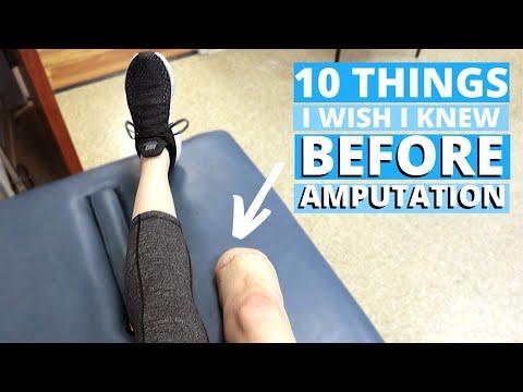 10 Things I WISH I Knew BEFORE Losing My Leg
