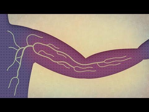 Intestinal cancer from celiac disease