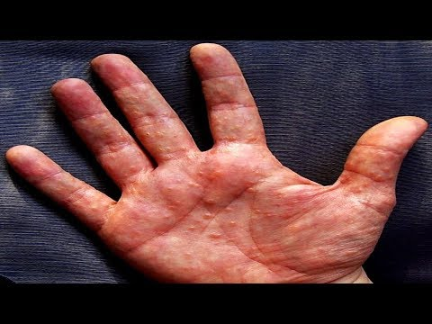 Condyloma acuminata man