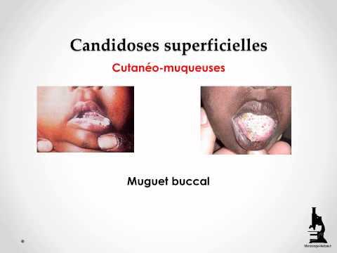 Le microorganisme végétal dans la bouche de longuent