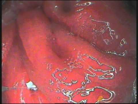 Ból hemoroidów, które pomogą