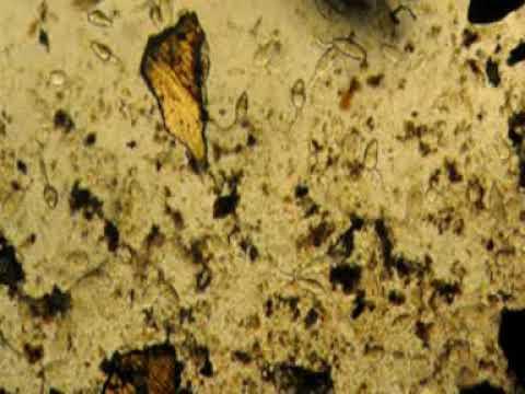 Enterobius vermicularis forma de contagio