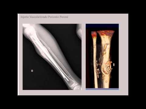 La distorsión del tiempo de tratamiento de la columna cervical