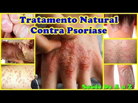 Torcido em eczema